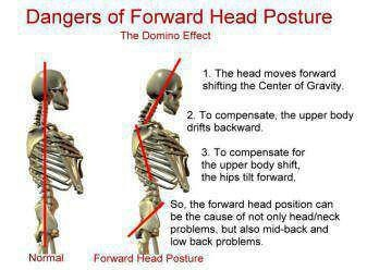 Consequences of incorrect head posture.